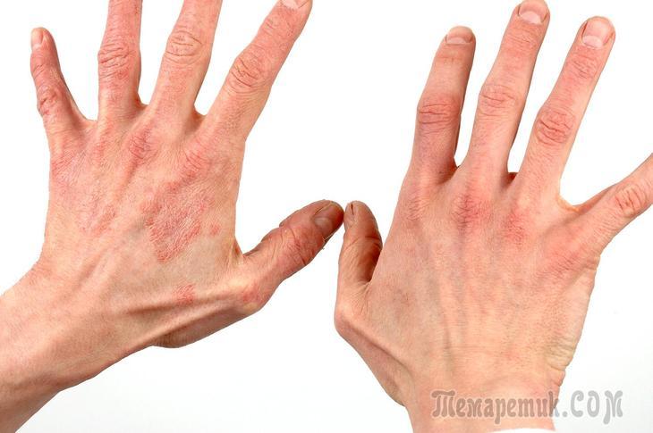 Дерматит на руках при диабете