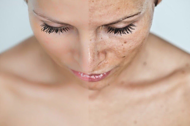 Применение масел для избавления от пигментных пятен на лице