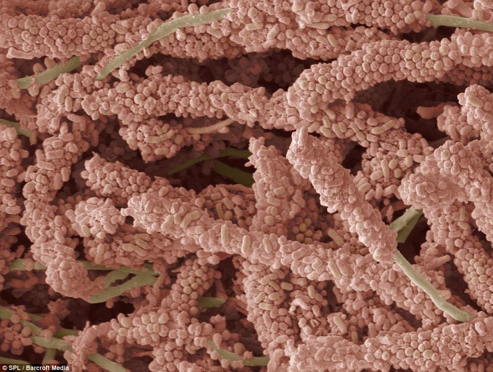 Бактерии на поверхности зуба, образующие налет