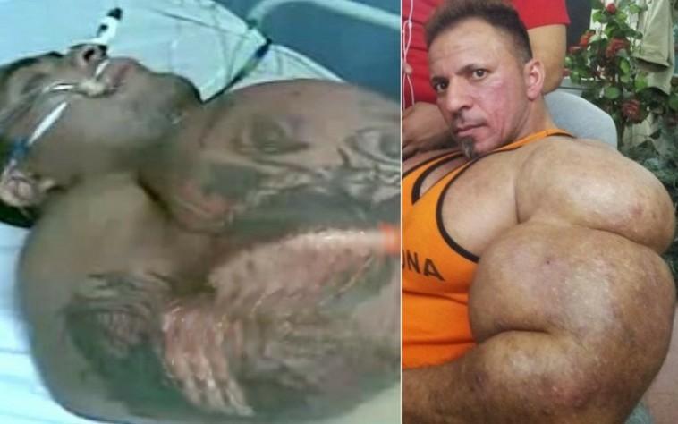 Атлеты с иголочки. Что стероиды делают с человеческим телом?