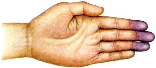 Что такое цианоз и откуда он берётся
