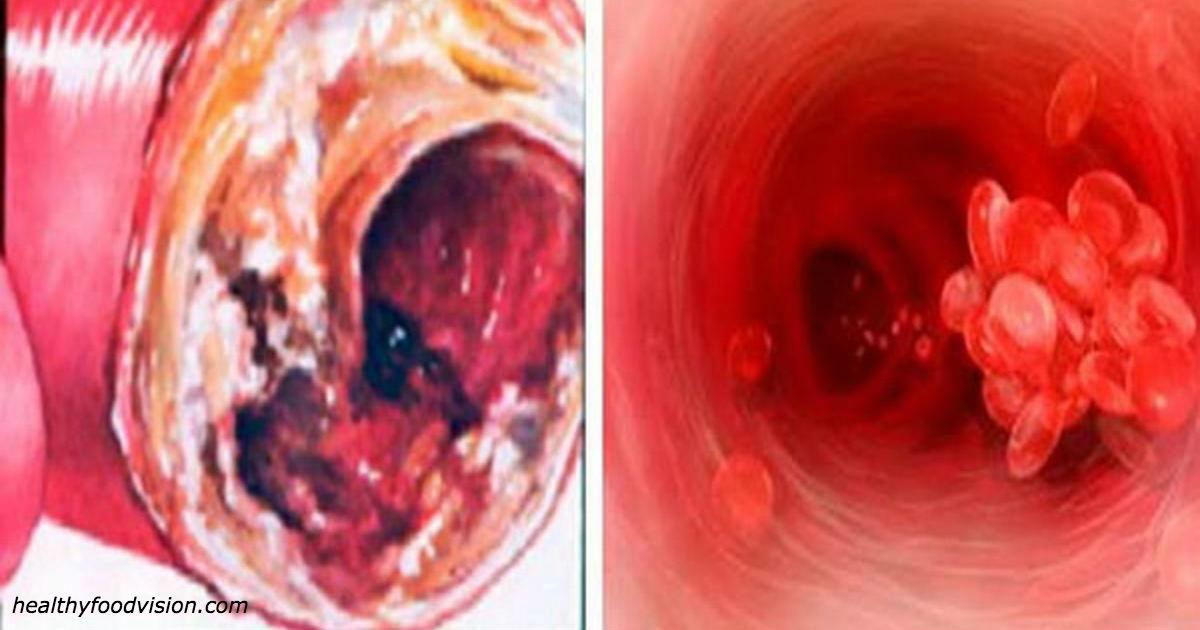Немецкие кардиологи знают: лучшее средство для чистки артерий лежит у вас на кухне