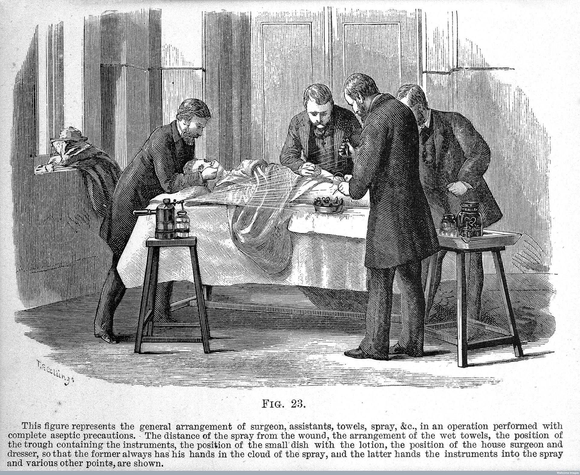 Use of the Lister carbolic spray, Antiseptic surgery, 1882.
