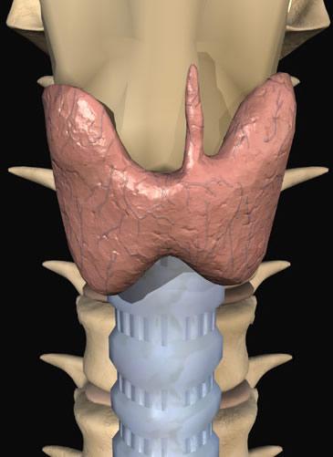 Лечение узла щитовидной железы народными средствами