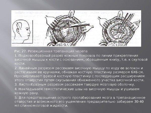 Операции на головном мозге Медицина, Мозг, Операция, Длиннопост, Текст, Картинки, Жесть