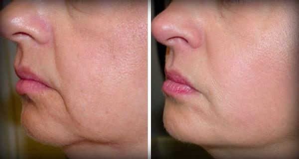 Больше никаких морщин и обвисшей кожи на лице – и всего 2 ингредиента