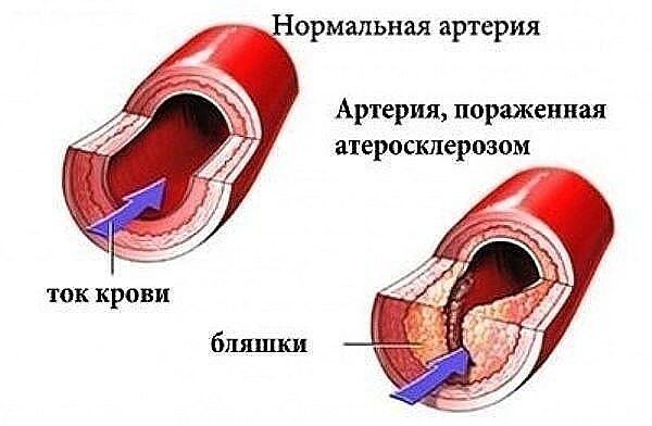 УКРОП + МЁД + ВАЛЕРИАНА = ЧИСТЫЕ СОСУДЫ