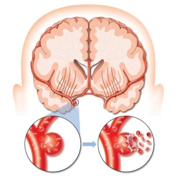 После инсульта мозга