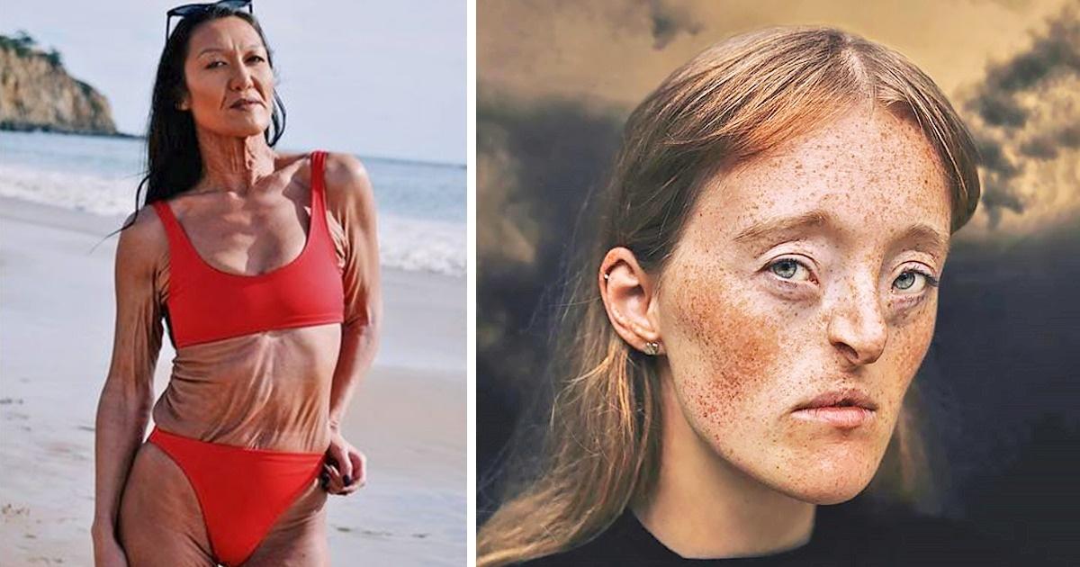 Картинки по запроÑу 11 феноменов тела, которые можно увидеть раз в жизни