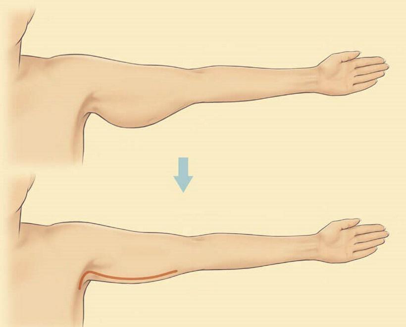 Похудеть Руки Ниже Локтя. Способы похудения в руках выше локтя