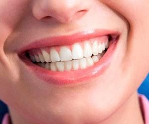 Как устранить зубной налет с…