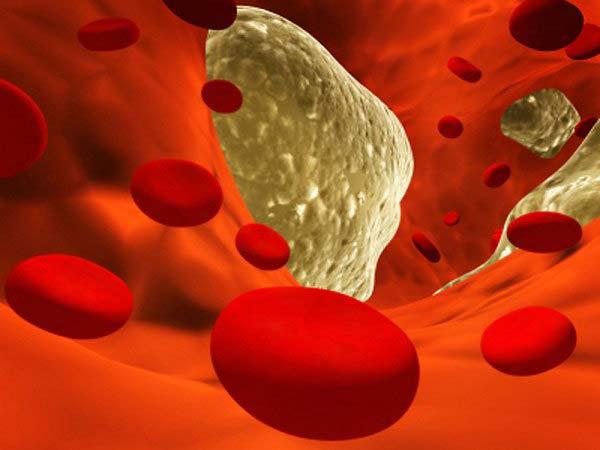 Повышенный уровень холестерина у человека