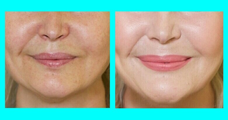 Почему женщины 50+ этого не видят: главная ошибка макияжа, которая лишает лицо свежести женщины, пудра, светоотражающими, частицами, Конечно, выглядит, только, ошибку, разный, макияжем, оттенка, пудры, визуально, свежее, делают, изнутри, матовое, приходят, исправить, макияжа