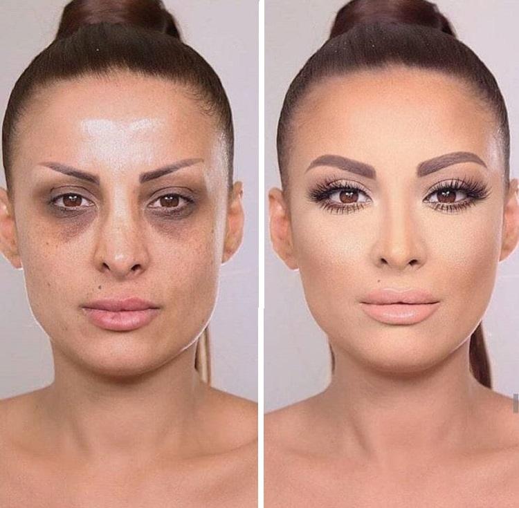 что контуринг лица инъекциями фото до и после совершая