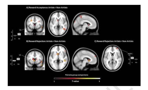 Исследование: мозг творческих людей мешает им зарабатывать