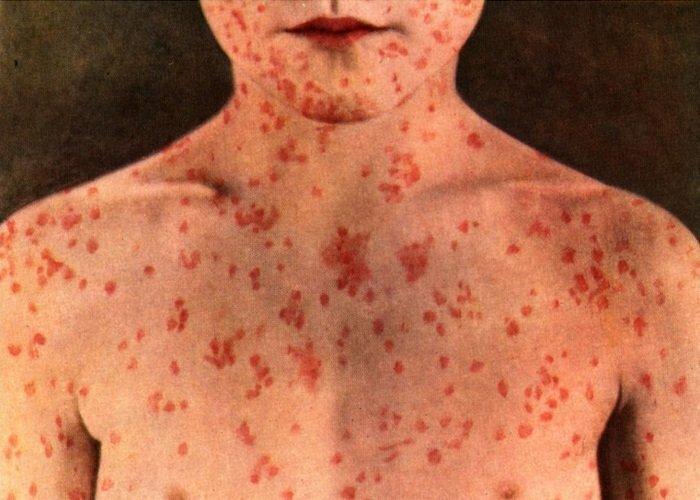Корь. Вакцинация, медицина, смертельные болезни 100 лет назад