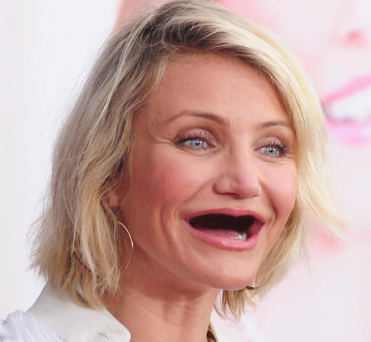 Улыбка без зубов фото смешные