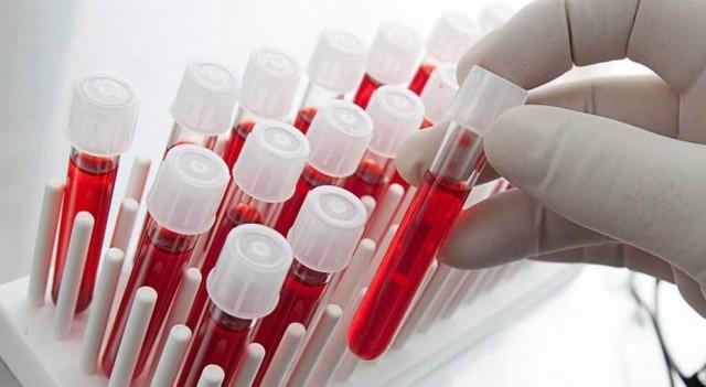 Здоровье по группе крови: болезни грозящие каждому «типу»?