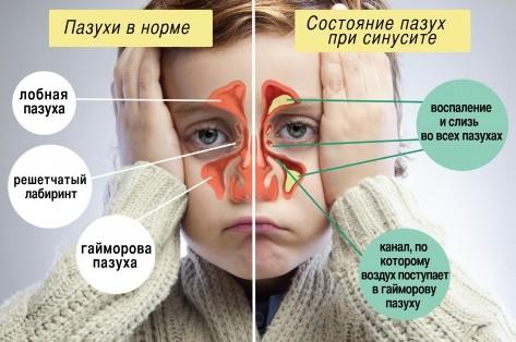 Гайморит у детей: признаки, …