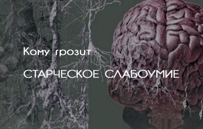 Смерти НЕТ... - В.М. Бехтерев. Слабоумие не приходит внезапно