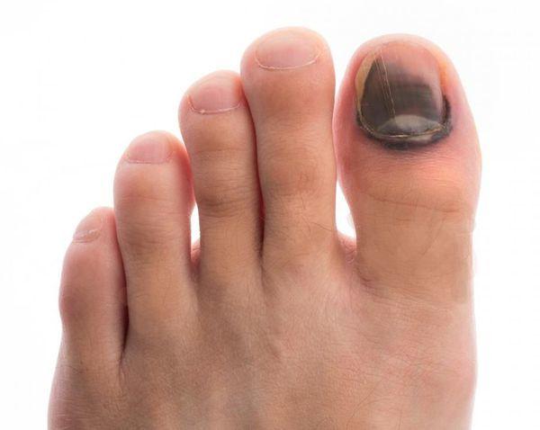 Диабетическая стопа: симптомы и лечение, стадии, уход за ногами болезни,диабетическая стопа,здоровье