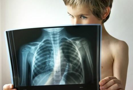 Пневмония у детей: симптомы,…