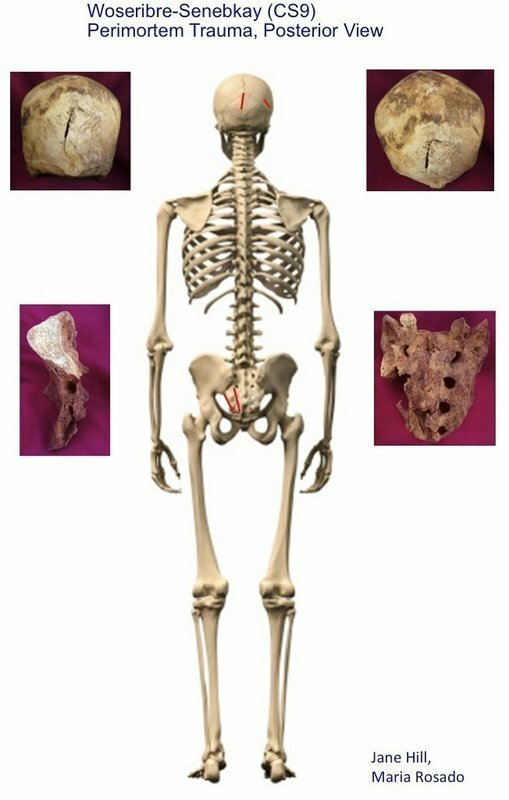Скелет Сенебкея сзади, красным отмечены следы ударов, по бокам кости со следами ран. археология, древний египет, интересно, история, наука