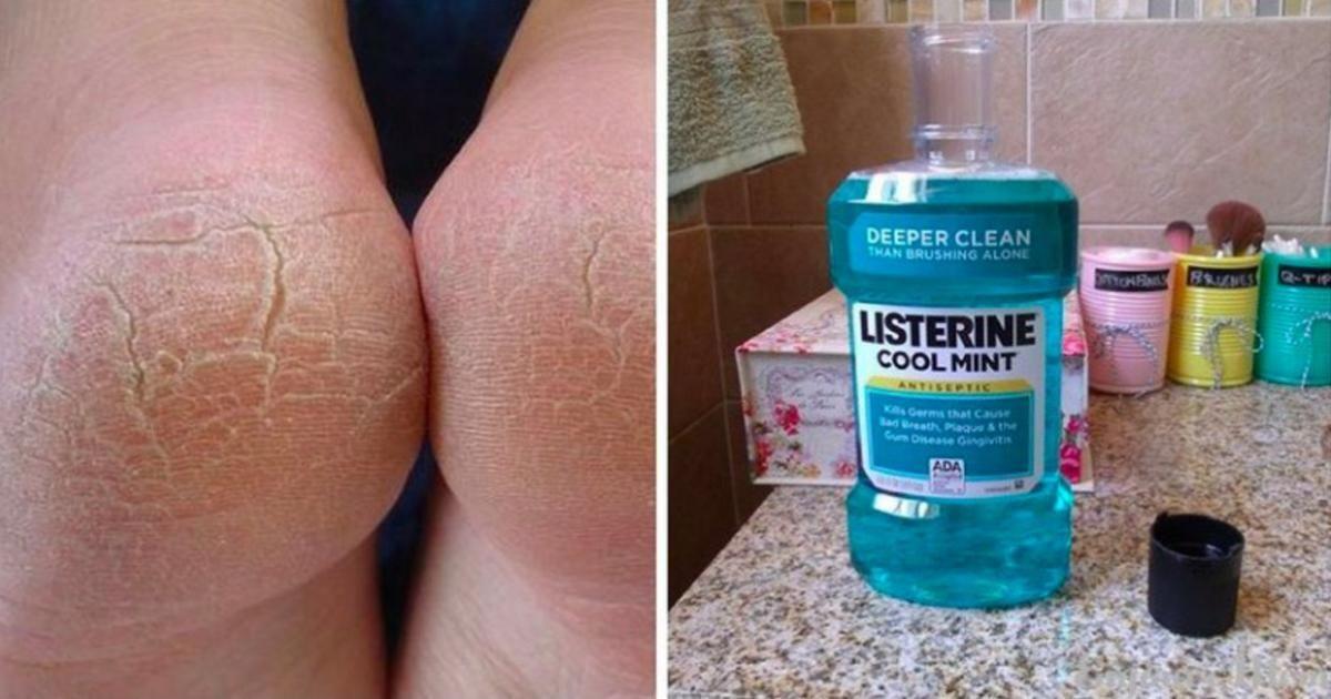 Удивительные способы использование Listerine, о которых должна знать каждая женщина