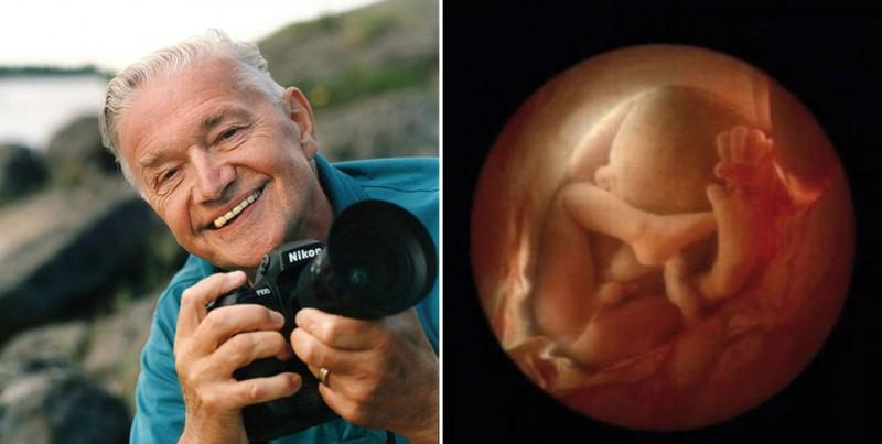 Уникальные кадры: от зачатия до рождения