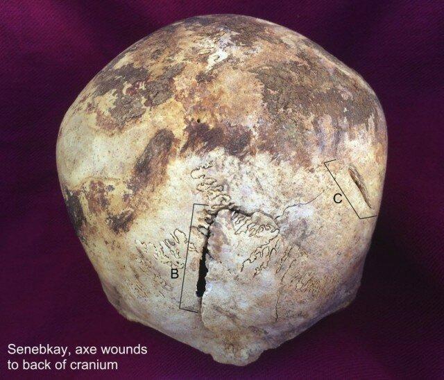 Вот эти глубокие зарубки оставил ему на черепе боевой топор, уж очень характерные метки. Кривизна лезвия выдает именно это оружие. археология, древний египет, интересно, история, наука