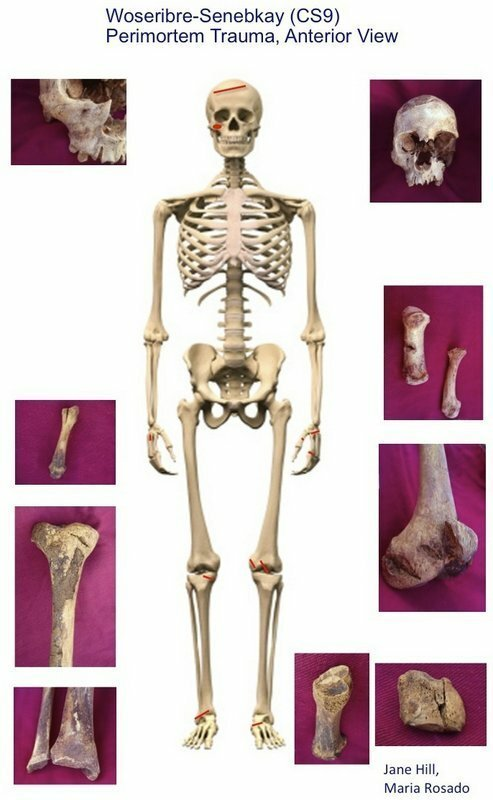 Скелет Сенебкея спереди, красным отмечены следы ударов, по бокам кости со следами ран. археология, древний египет, интересно, история, наука