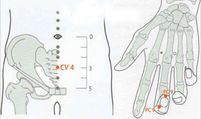 Массаж точки Точки Cv 4 (Гуа…
