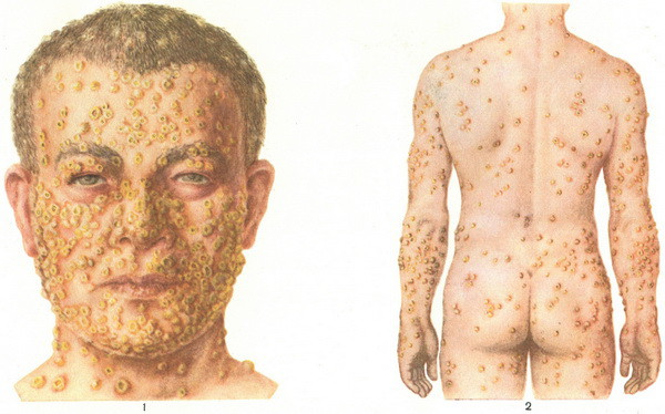 Самые редкие болезни в мире болезни, редкие заболевания