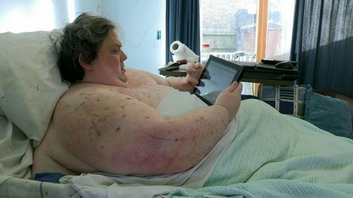 Рентгеновские снимки 400-килограммового мужчины