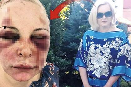 Россиянка приехала к мужчине в Турцию и сбежала через два дня избиений