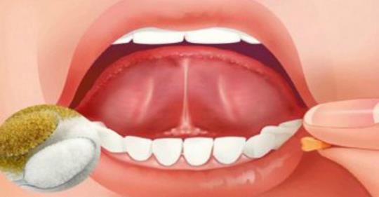 Откройте для себя силу помещения соли и сахара под язык