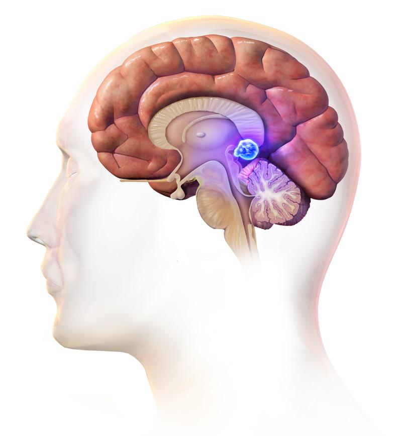 Кальциноз шишковидной железы: что нужно знать о здоровье «третьего глаза»