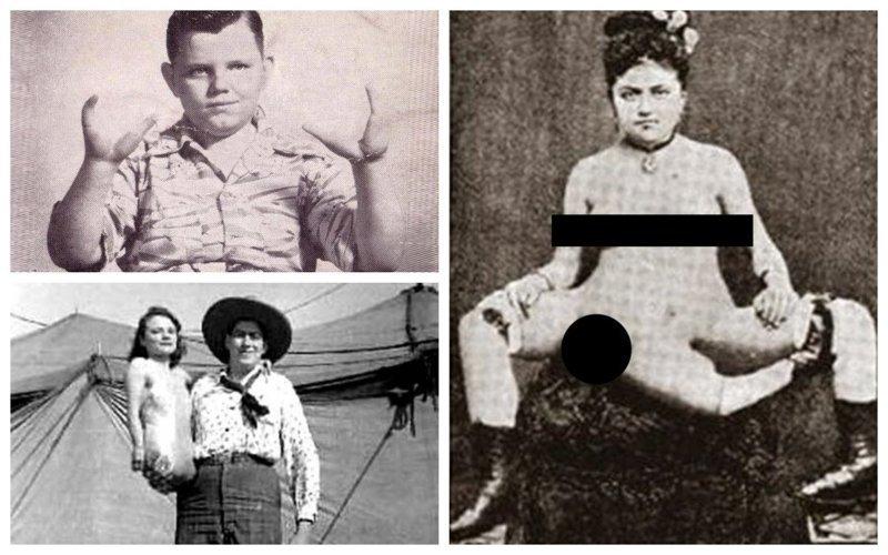 Реальные люди из прошлого с пугающими мутациями
