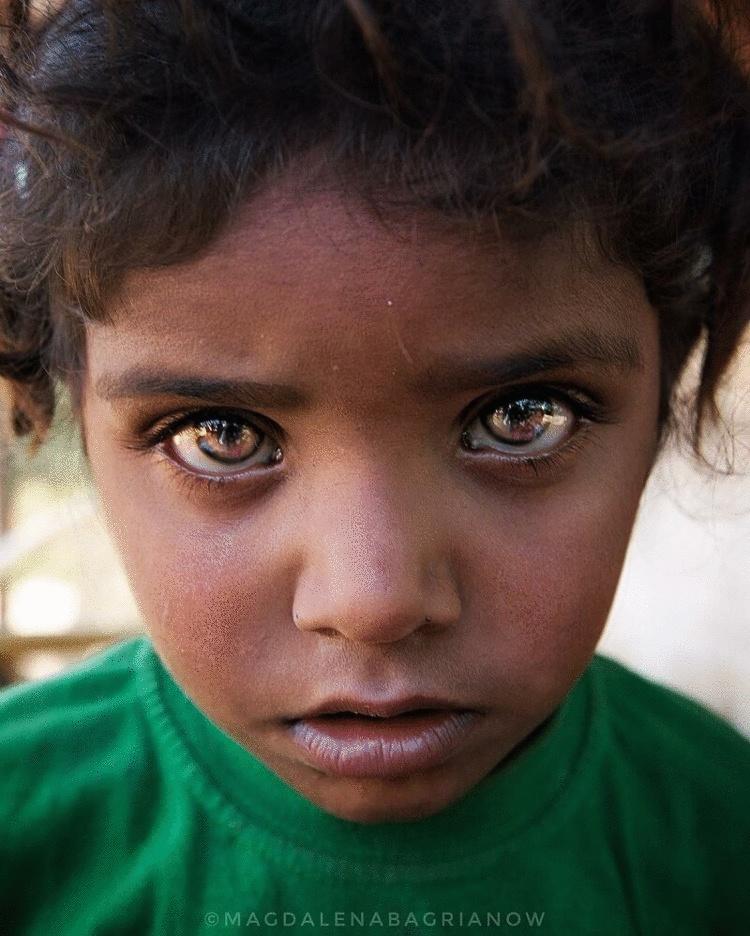 редкий цвет глаз у людей фото любого